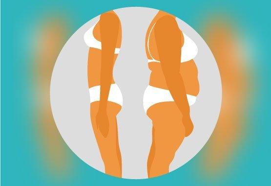 Avant/après l'abdominoplastie