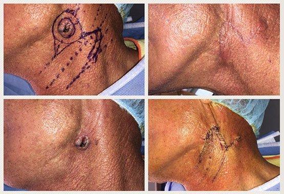 Avant/après chirurgie réparatrice cou