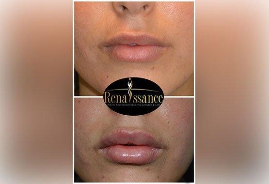 Chirurgie esthétique de la bouche au Maroc