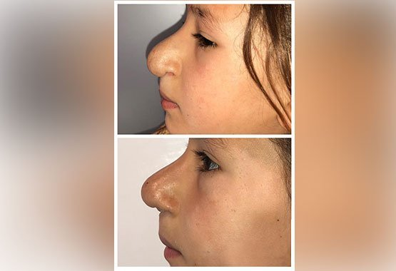 Chirurgie réparatrice pour le nez au Maroc