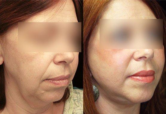 Chirurgie esthétique pour visage