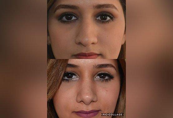 Avant/après chirurgie esthétique du visage au Maroc