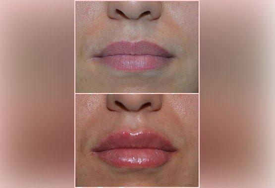 Chirurgie esthétique des lèvres au Maroc