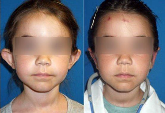 Chirurgie esthétique du visage pour enfants au Maroc