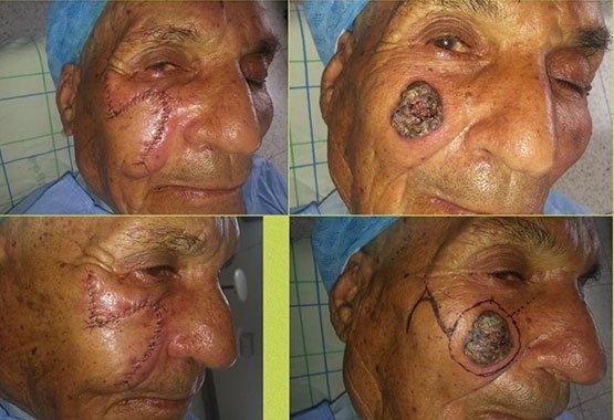 Avant/après chirurgie réparatrice de verrues au Maroc