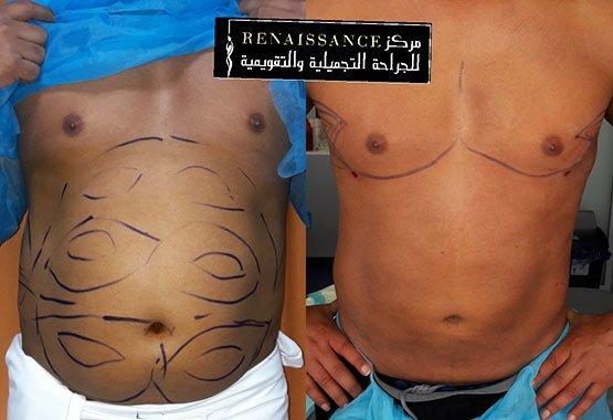 Abdominoplastie à Marrakech