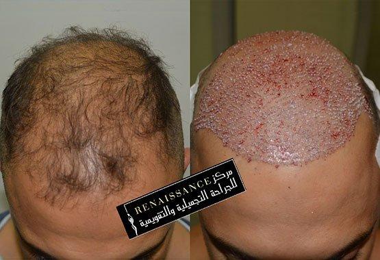 Greffe de cheveux au Maroc