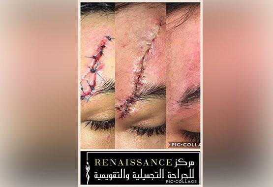 Avant/après traitement cicatrice sur le front au Maroc