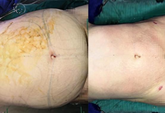 Chirurgie esthétique du ventre au Maroc