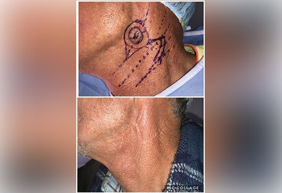 Avant/après chirurgie réparatrice au Maroc