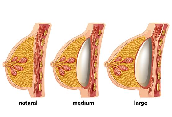 La chirurgie esthétique des seins au Maroc