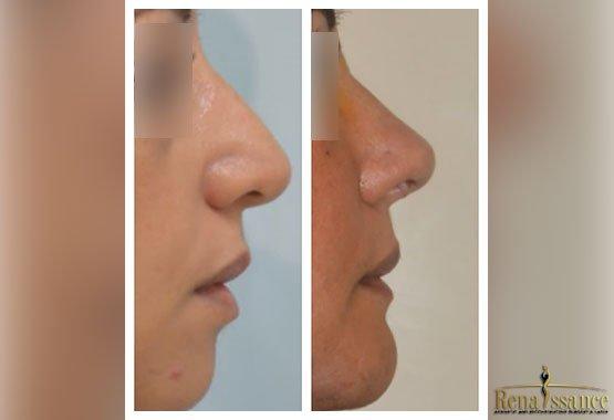 Chirurgie esthétique du nez à Marrakech