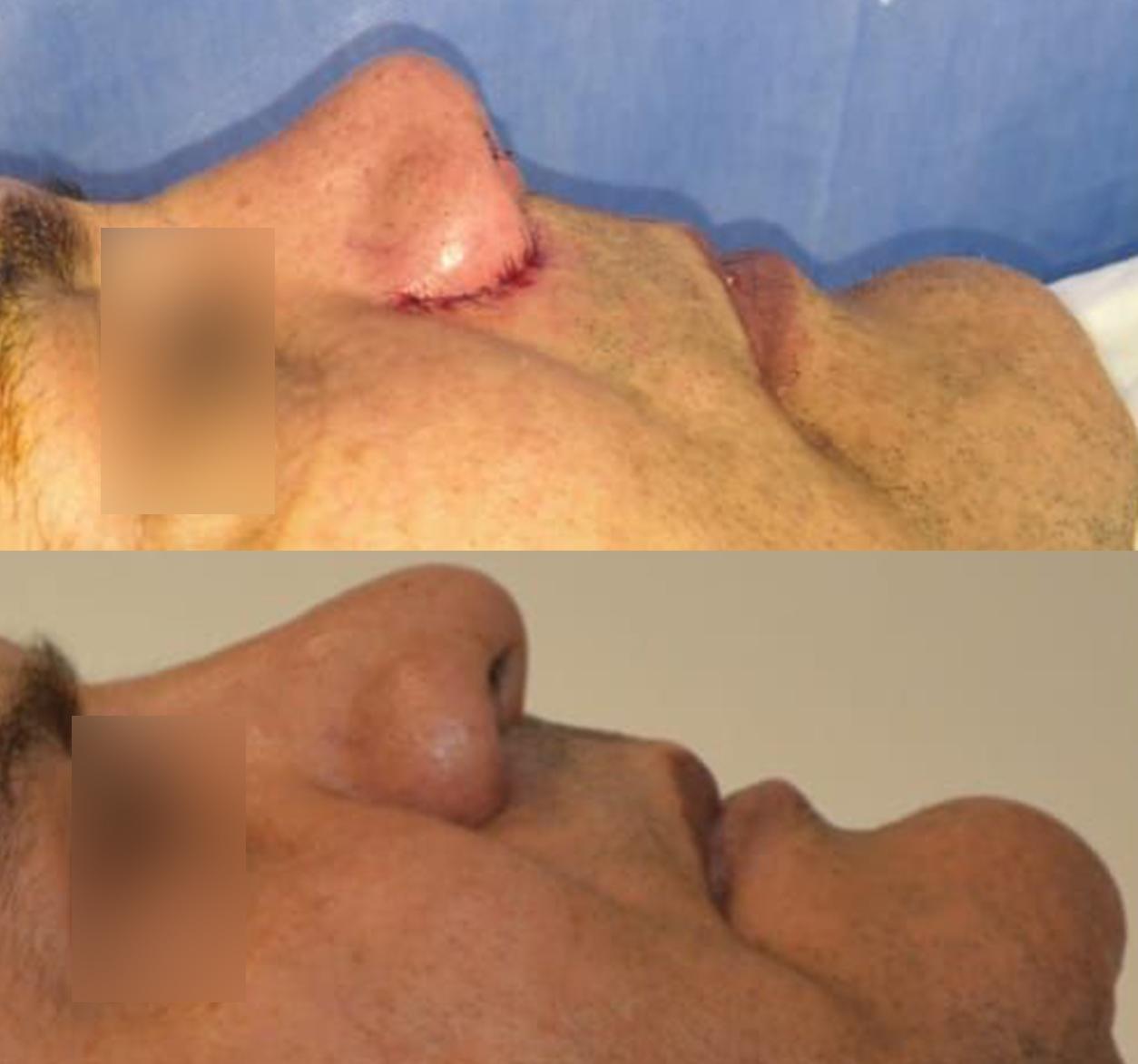 Intervention chirurgicale sur nez au Maroc